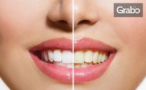 Система за Домашно Избелване на Зъбите Whiteness Рerfect