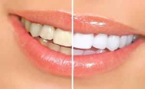 Почистване на Зъбен Камък и Полиране на Зъбите -Преглед, План на Лечение от Дентален Кабинет д-р Снежина Цекова